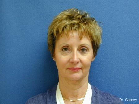 Virginia Beach Facelift 1132 - Before Image