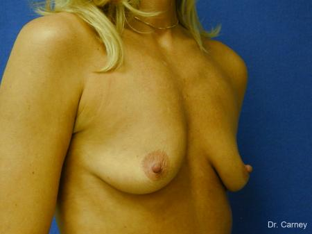 Virginia Beach Combo Procedures Breast 1094 - Before Image