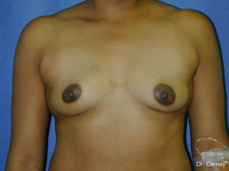 Virginia Beach Breast Augmentation 1091 - Before Image 1