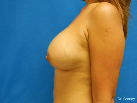 Virginia Beach Breast Augmentation 1860 -  After Image 5