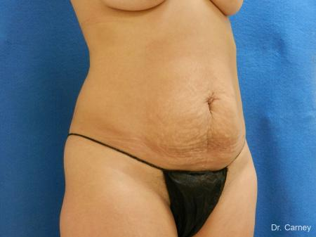 Abdominoplasty: Patient 2 - Before Image 2
