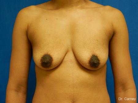 Virginia Beach Combo Procedure Breast 1861 - Before Image