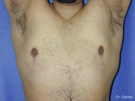 Virginia Beach Gynecomastia 1255 -  After Image 2