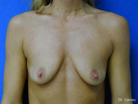 Virginia Beach Combo Procedures Breast 1094 - Before and After Image 2