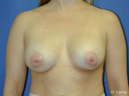 Virginia Beach Breast Augmentation 1083 -  After Image 3