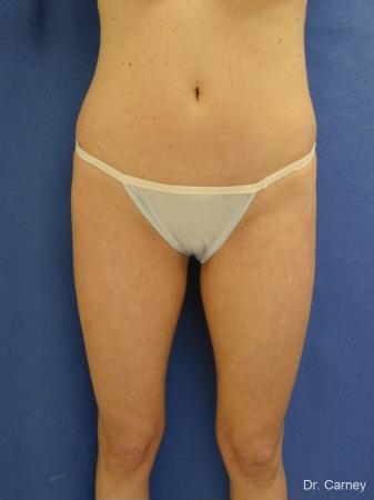 Virginia Beach Liposuction 1280 - Before Image 1