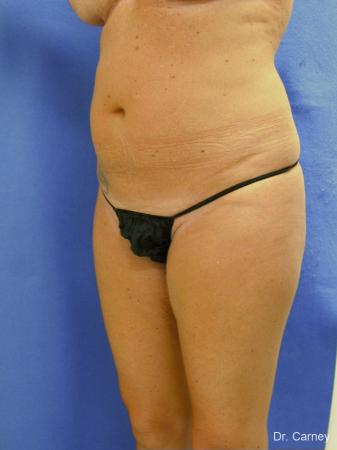 Virginia Beach Liposuction 1279 - Before Image 3