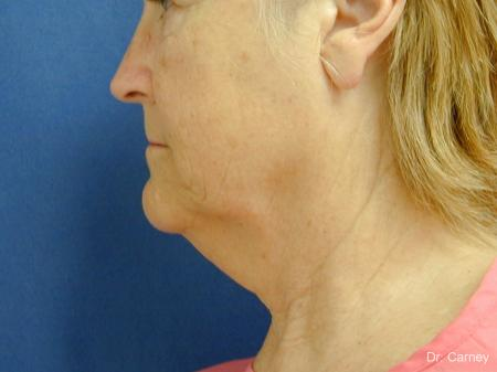 Virginia Beach Neck Lift 1207 - Before and After Image 3