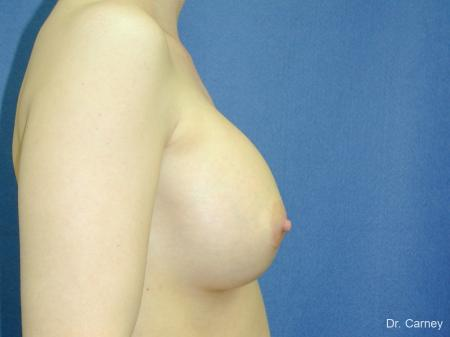 Virginia Beach Breast Augmentation 1086 -  After Image 1