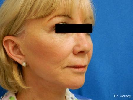 Virginia Beach Laser Skin Resurfacing Face 1263 - Before Image 2