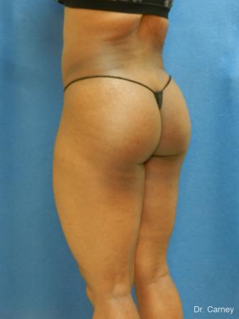 Brazilian Butt Lift: Patient 3 - After Image 4