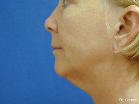 Virginia Beach Laser Skin Resurfacing - Face 1260 - Before and After Image 3