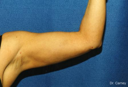 Virginia Beach Brachioplasty 1141 - After Image