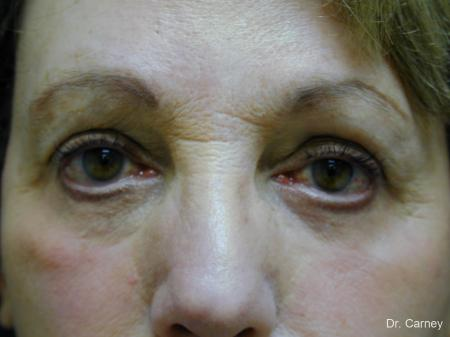 Virginia Beach Eyelid Lift 1128 - After Image