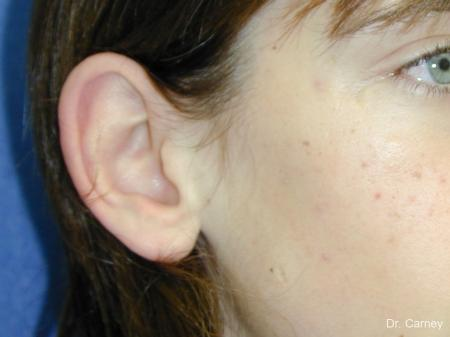 Virginia Beach Otoplasty Earlobe Repair 1271 - Before and After Image 4