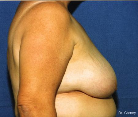 Virginia Beach Breast Lift 1186 - Before Image 2