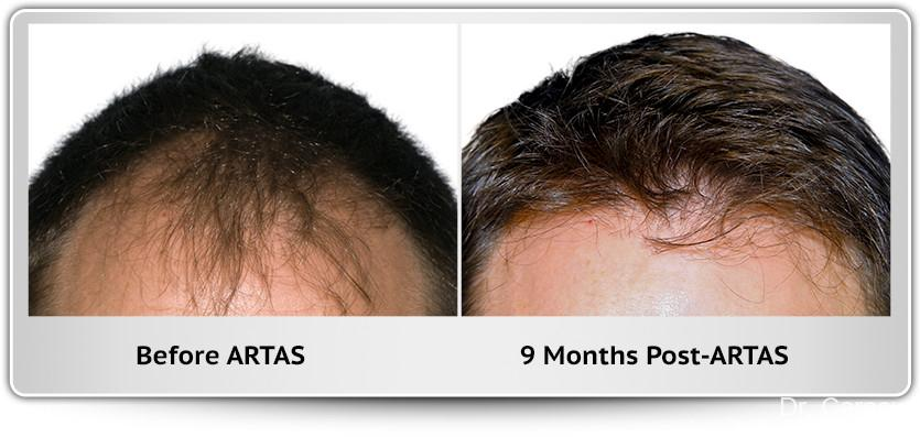 Hair Transplantation: Patient 6 - Before and After Image