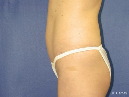 Virginia Beach Liposuction 1280 - Before Image 3
