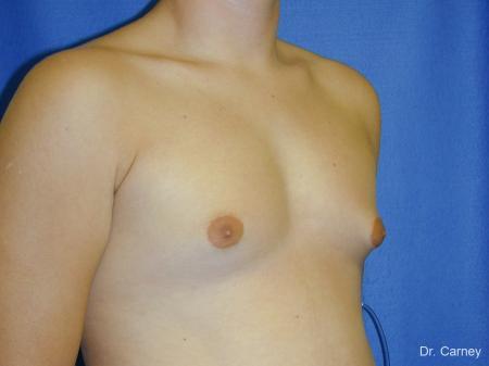 Virginia Beach Gynecomastia - Before Image 2