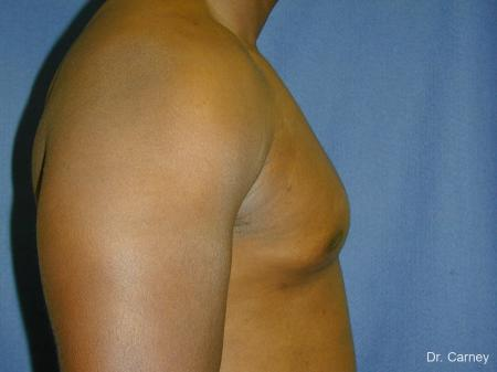 Virginia Beach Gynecomastia 1226 -  After Image 4