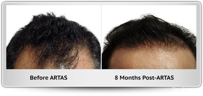 Hair Transplantation: Patient 4 - Before and After Image 1