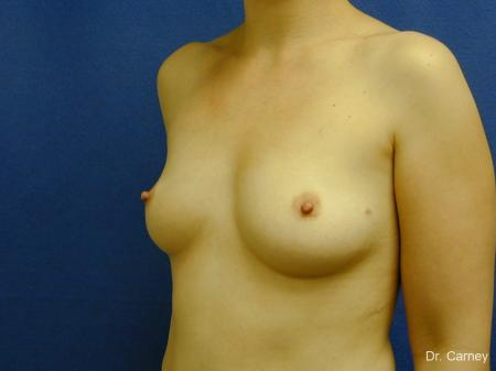 Virginia Beach Breast Augmentation 1086 - Before Image 2