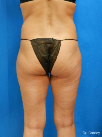 Brazilian Butt Lift: Patient 7 - Before Image 3