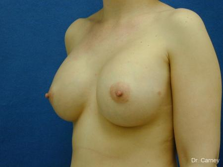 Virginia Beach Breast Augmentation 1086 -  After Image 2