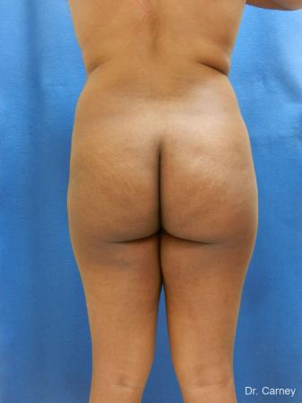 Brazilian Butt Lift: Patient 6 - Before Image 3