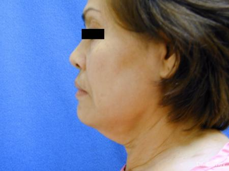 Virginia Beach Neck Lift 1268 - Before and After Image 3