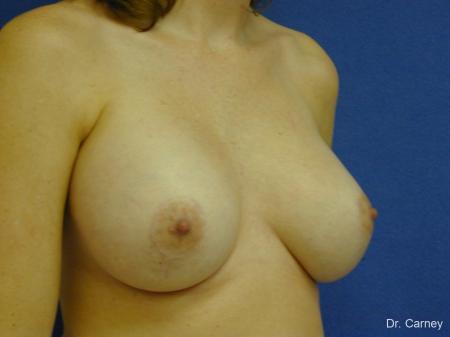 Virginia Beach Combo Procedures Breast 1095 -  After Image 3