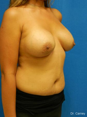 Virginia Beach Breast Augmentation 1860 -  After Image 2