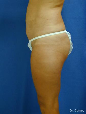 Virginia Beach Liposuction 1284 -  After Image 3
