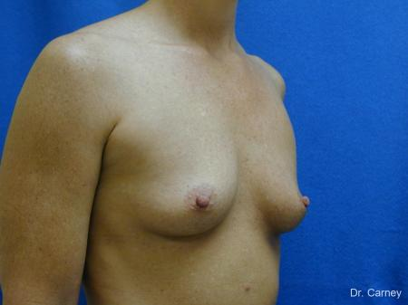 Virginia Beach Breast Augmentation 1214 - Before Image 2