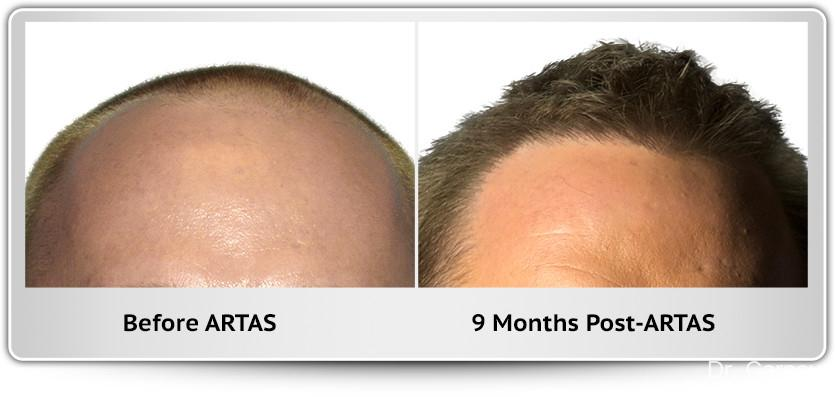 Hair Transplantation: Patient 15 - Before and After Image 1