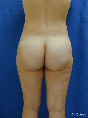 Virginia Beach Liposuction 1276 -  After Image 3