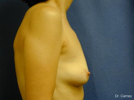 Virginia Beach Breast Augmentation 1088 - Before Image 1