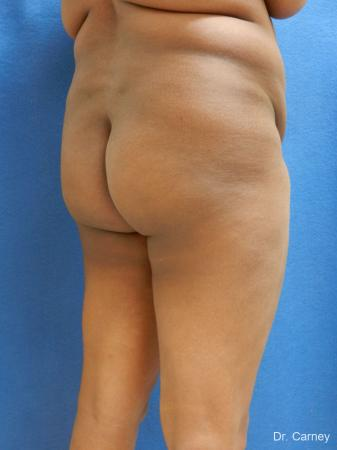 Brazilian Butt Lift: Patient 5 - Before Image 4