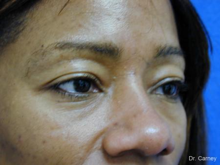 Virginia Beach Eyelid Lift 1130 - Before Image