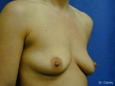 Virginia Beach Combo Procedures Breast 1096 - Before Image