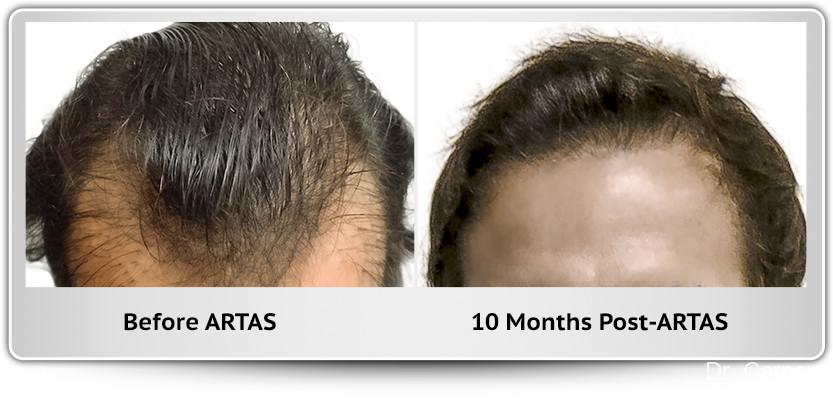 Hair Transplantation: Patient 13 - Before and After Image 1