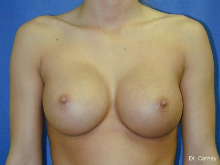 Virginia Beach Breast Augmentation 1097 -  After Image 3