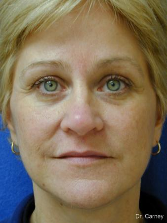 Virginia Beach Eyelid Lift 1344 - After Image
