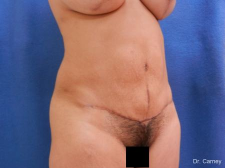 Abdominoplasty: Patient 2 - After Image 2