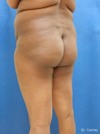 Brazilian Butt Lift: Patient 5 - Before Image 2