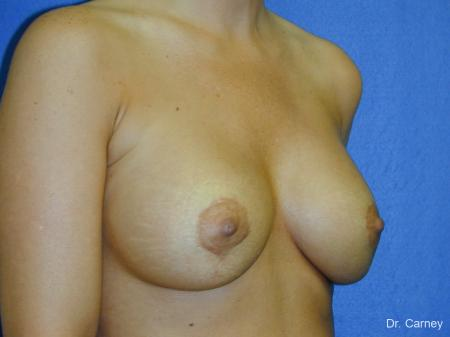 Virginia Beach Combo Procedures Breast 1096 - After Image