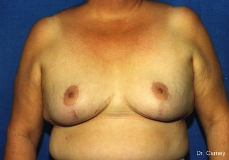 Virginia Beach Breast Lift 1186 -  After Image 1