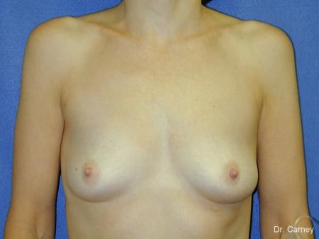 Virginia Beach Breast Augmentation 1088 - Before and After Image 3