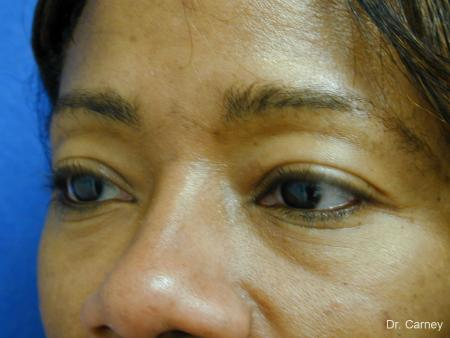 Virginia Beach Eyelid Lift 1130 - Before and After Image 2