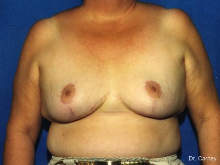 Virginia Beach Breast Reduction 1234 - After Image